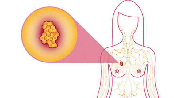 Amazing: Six Foods That Kill 100 Percent of Breast Cancer Cells!
