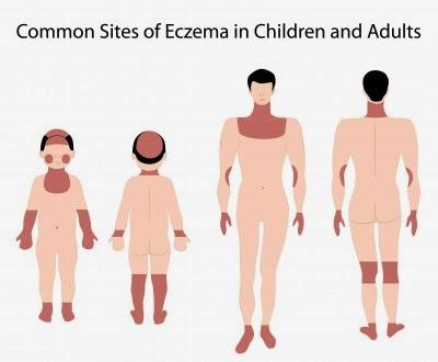 علاج الاكزيما, المفاضلة بين العلاجات المختلفة للاكزيما, و حقائق علمية عن علاج الاكزيما