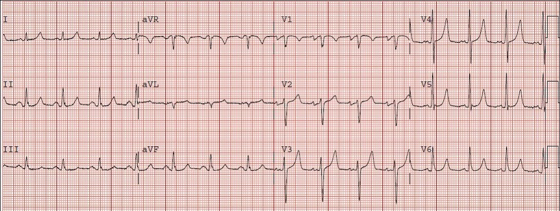 Notice the ST segments here are not nearly as flat and the rise to a peaked T-wave especially in lead V4 not nearly as steep  sc 1 st  Dr. Smithu0027s ECG Blog - Blogspot & Dr. Smithu0027s ECG Blog: HyperKalemia with Cardiac Arrest. Peaked T ...