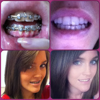 before and after orthognathic surgery steffie smile adult braces