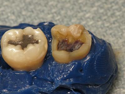 filling, amalgam, restoration, preparation, decay, cavity, molar, mandibular molar