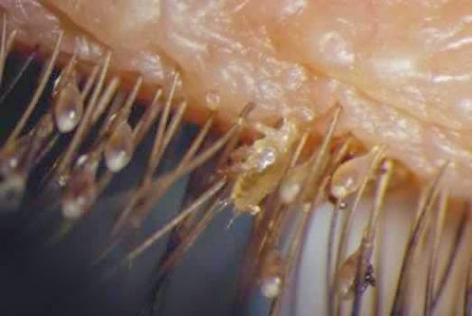 Treatment - Demodex