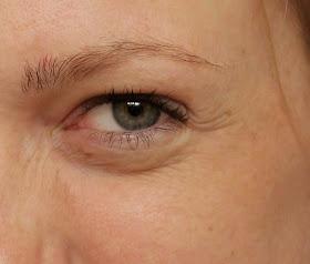krim eye treatment shaklee