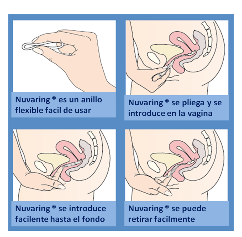 zachem-nuzhno-vaginalnoe-koltso