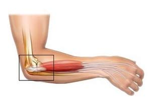 Elbow Bursitis Cure : Sorts Of Carpal Tunnel Exercises