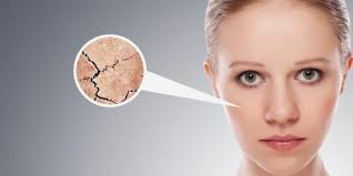 kulit kering pada wajah