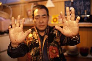 contoh anggota yakuza dengan jari kepotong