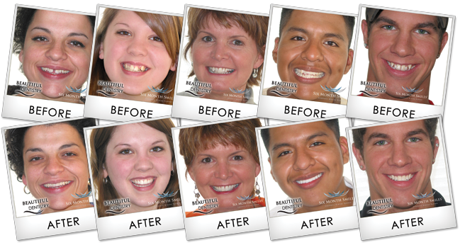 Before and After Beautiful Dentistry Photos