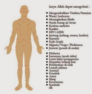 Bekam di Malag, Klinik Bekam di Malang, Praktek Bekam di Malang