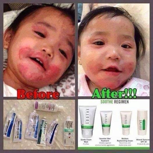 before and after pics using our soothe regimen