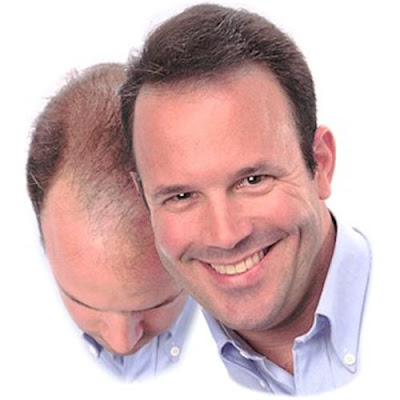 How to overcome baldness naturally 1