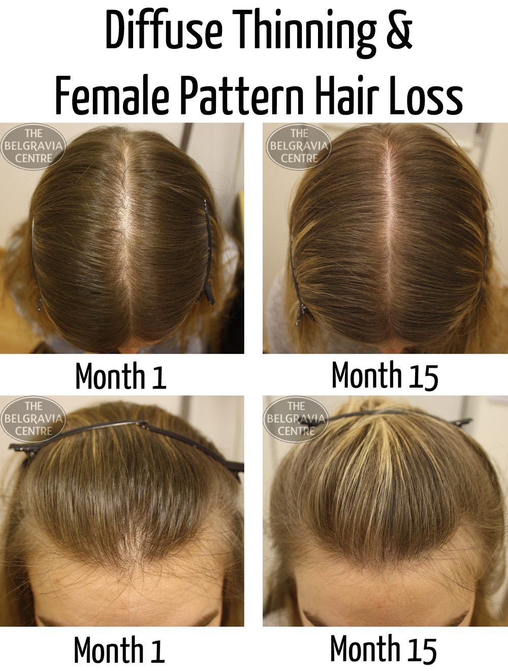 What You Can Do About Thinning Hair And Hair Loss Hair ...