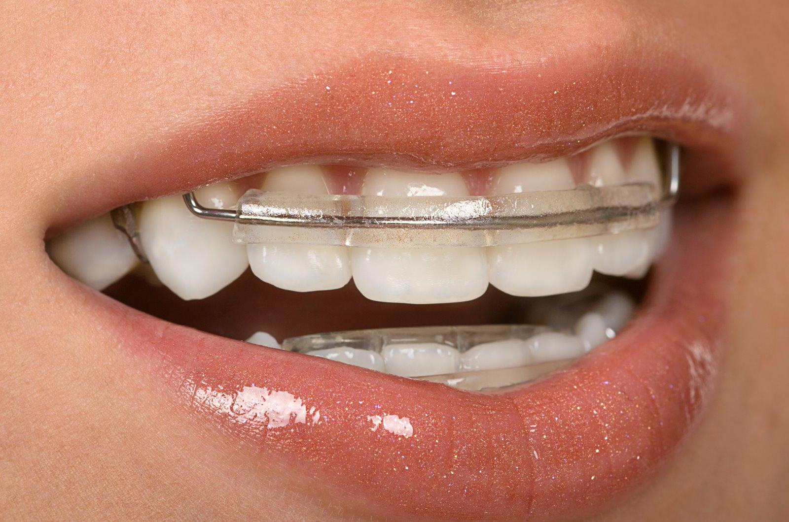 biaya pasang kawat gigi bagian atas
