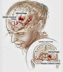 Ciri-ciri Penyakit Stroke Gejala,Penyebab Dan Obat Alami