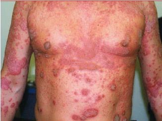 Penyakit psoriasis