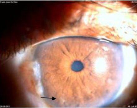 glaucoma secundario a esteroides pdf