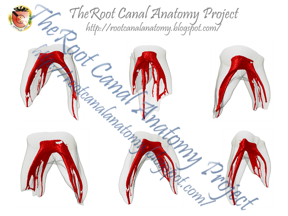 The Root Canal Anatomy Project Primary Molars Are Easy
