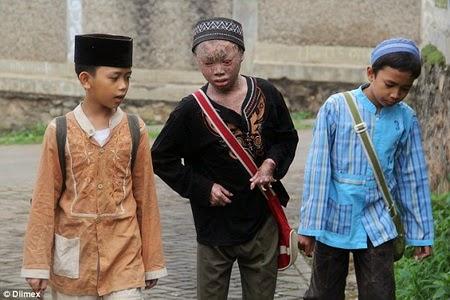 """""""Bocah Ular"""" di Indonesia Menarik Simpati Dunia"""