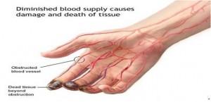 Dr Herry Setya Yudha Utama SpB. FInaCS. MHKes. ICS: Diagnosis and ...