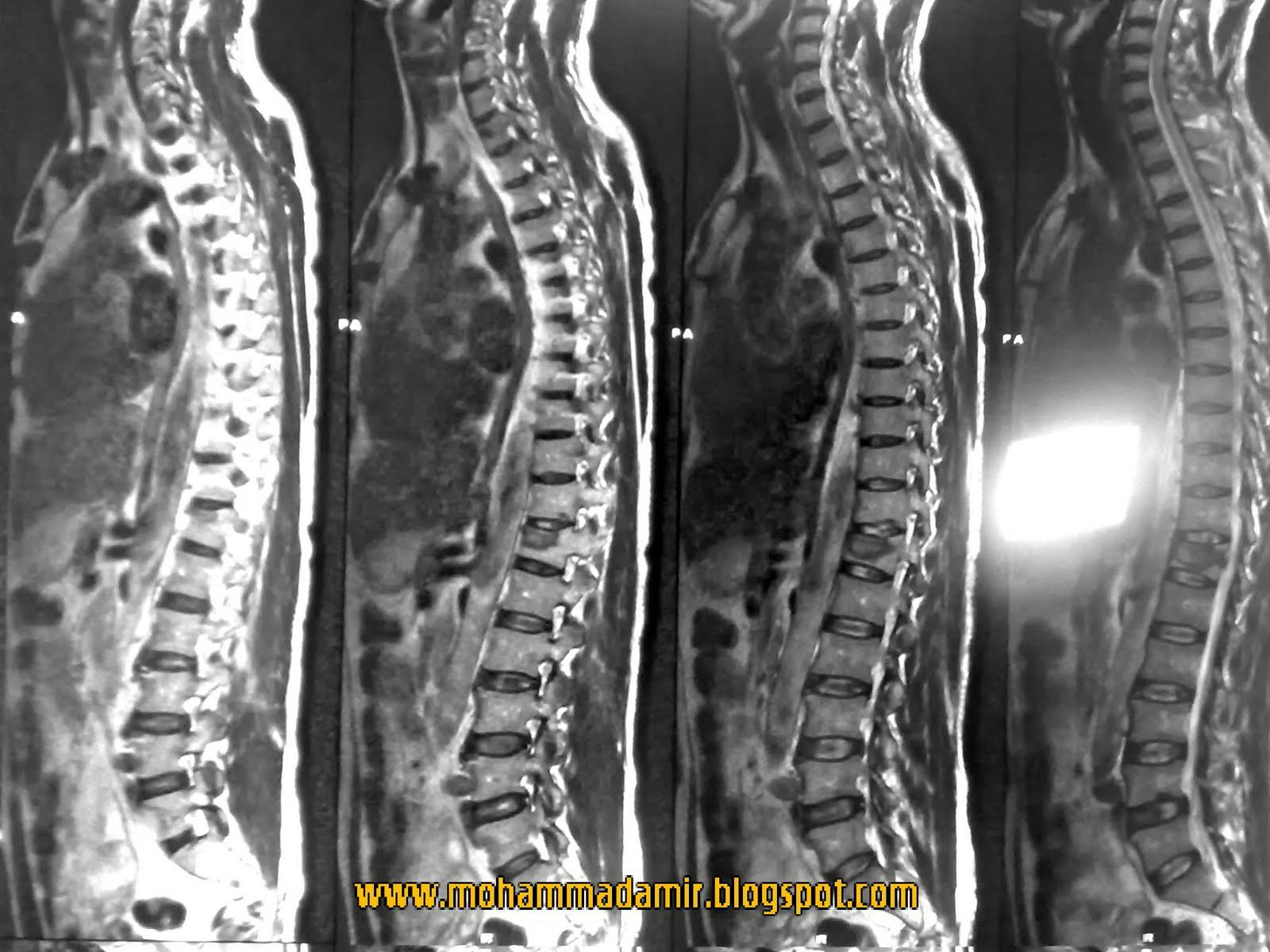 Compression Fracture of Lumbar Vertebrae-3.bp.blogspot.com