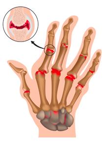 sneda fingrar reumatism