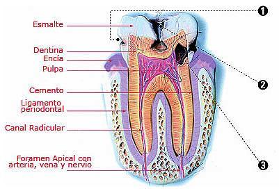 Tipos de caries: 1. Caries inicial 2. Caries con afección dentaria 3. Caries con afección pulpar