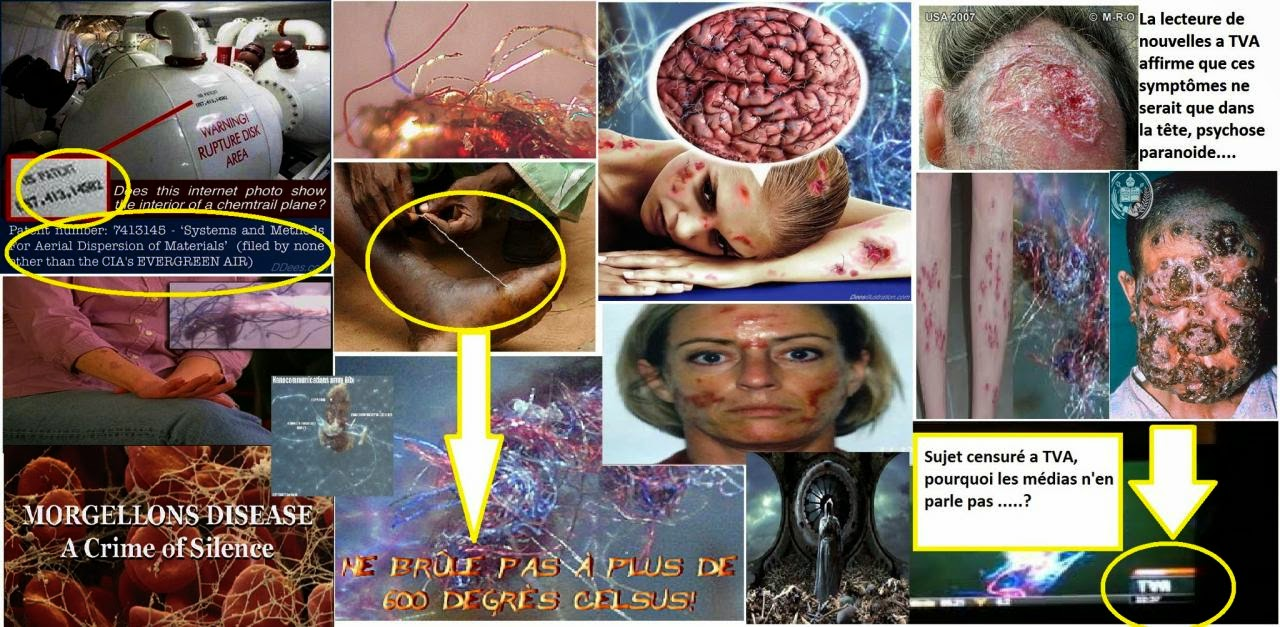 Image result for morgellons que es
