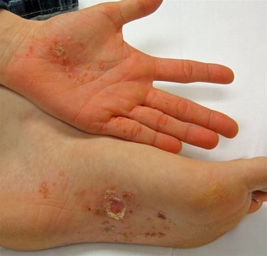 how to get rid of eczema on feet