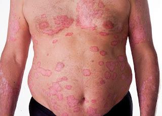 cara menyembuhkan kulit gatal bersisik di seluruh tubuh