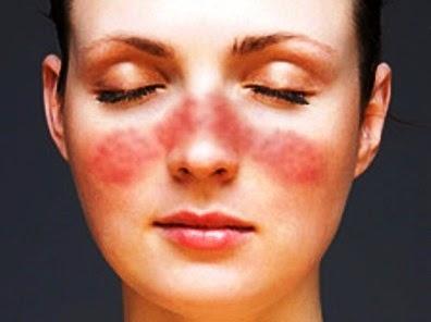 Obat Tradisional Herbal Penyakit Lupus
