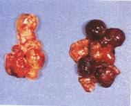 Hình 5: Nang trứng sung huyết, xuất huyết, hoại tử (bên phải)