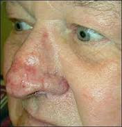 Causes of Rhinophyma - RightDiagnosis.com