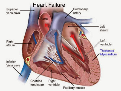 Heart Failure Causes, Symptoms, Diagnosis, Treatment, Prevention And Home Remedies