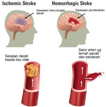 Jenis stroke atau angin ahmar yang menyebabkan badan lumpuh