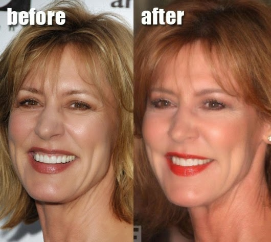 Christine Lahti Plastic Surgery Botox Injections Before