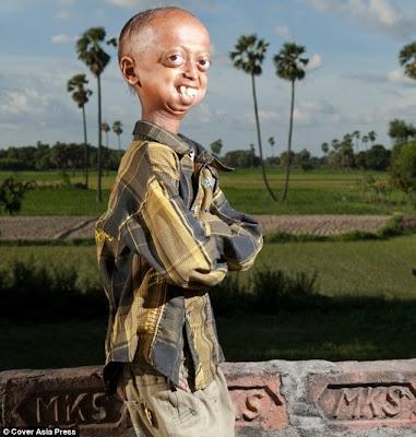 Ali Hussain Khan progeria