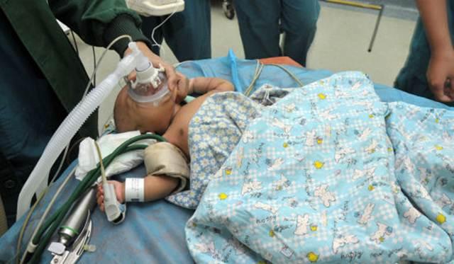 bayi setelah operasi