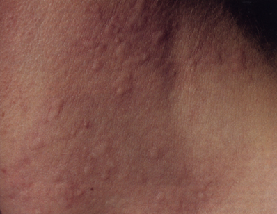 champix and excessive sweating