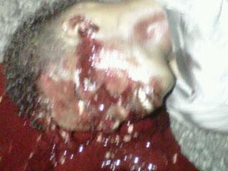 Un joven fue aplastado por un camió en la avenida Francisco Alberto Caamaño frente al McDonald