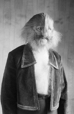 Lion Face Syndrome Lionel the lion-faced man.