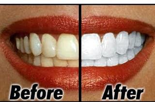 memutihkan gigi, gigi putih, cara gigi putih
