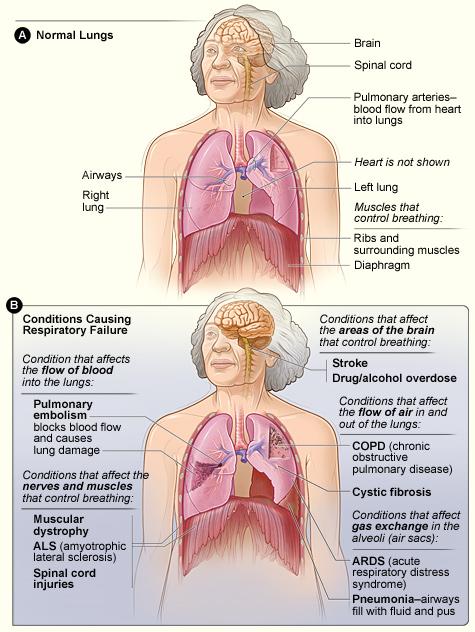 Saddleback Nursing N172 A P Respiratory Review