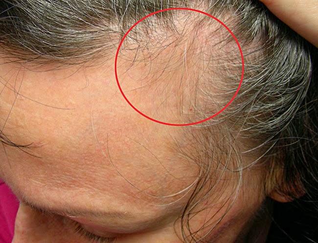 Make Hair Thicker Naturally