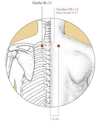 Segala masalah tulang dan sendi boleh dirawat dengan menekan titik akupunktur Dazhu BL-11
