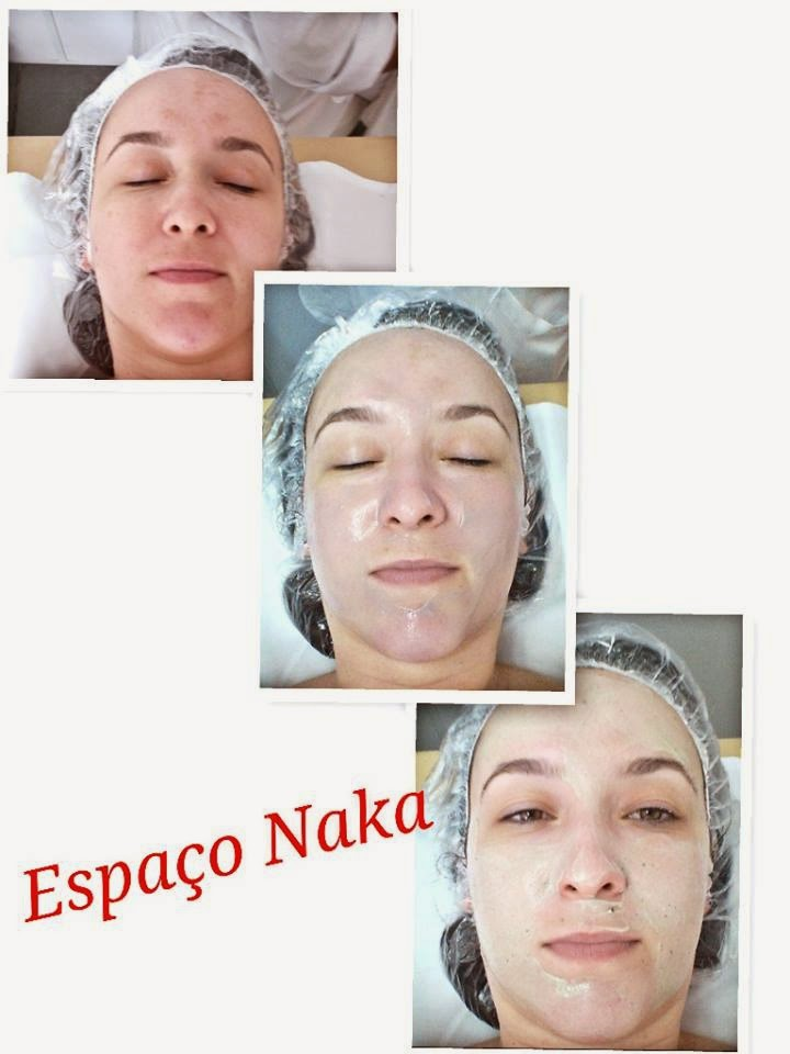 espaço naka, estética facial, limpeza de pele, colágeno, blog camila andrade, blog de moda de ribeirão preto
