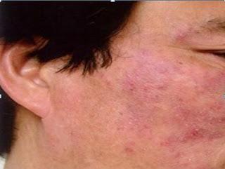 Lộ 2 cách chữa viêm da tiết bã bằng mật ong hiệu quả