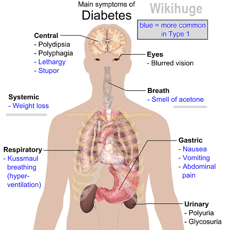 type 1 diabetes symptoms