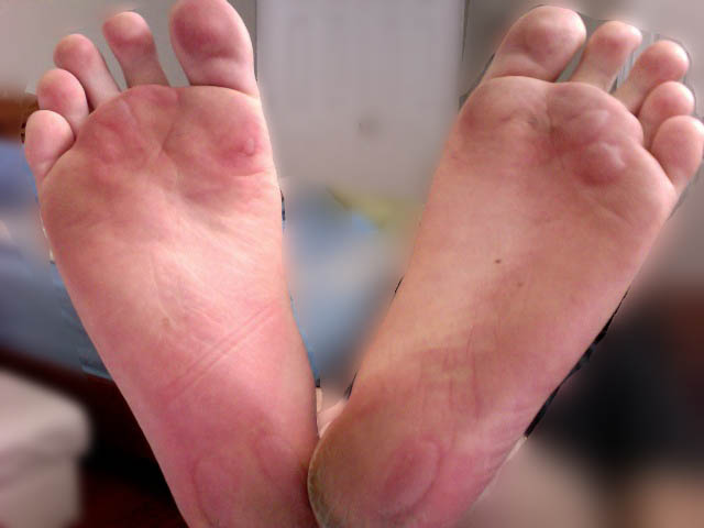 herpes on feet pictures