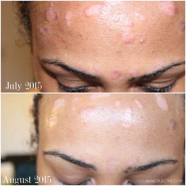 Psoriasis Awareness Month Living with Psoriasis and Curly Hair TriDerma Skincare