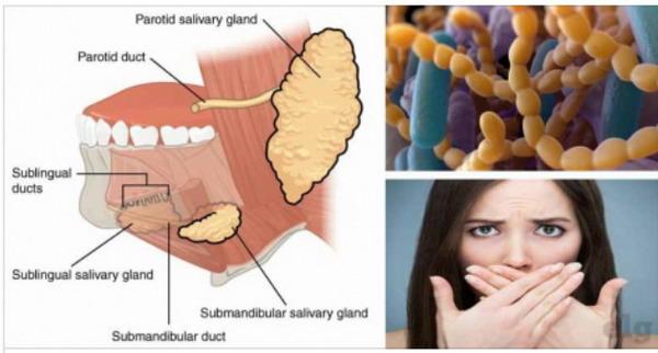 Cara Menghentikan Bau Mulut Selamanya yang Terbukti Ampuh